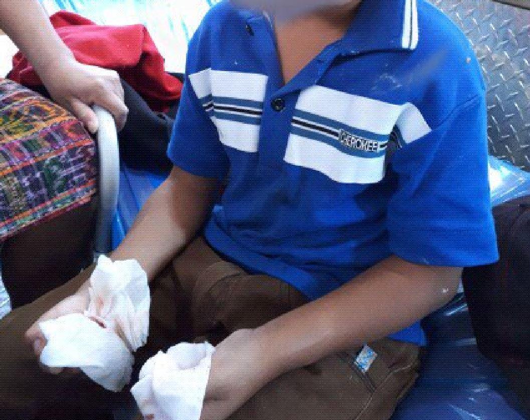 Niños amputados por bombas EU Emisoras Unidas Guatemala