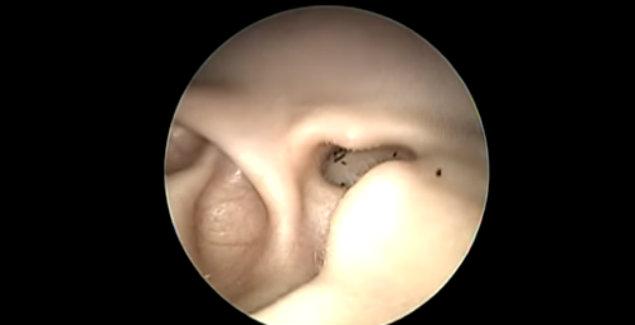 Video viral otorrinolaringólogo Malasia