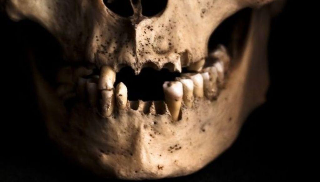 dientes humanos