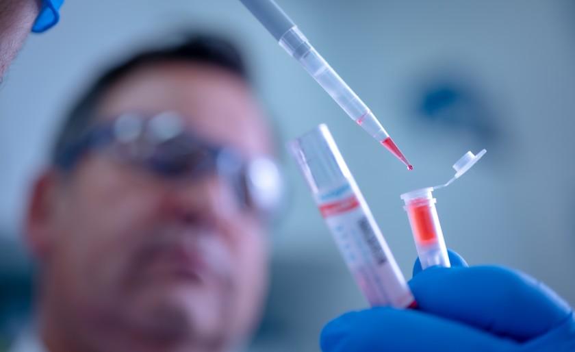 pruebas coronavirus
